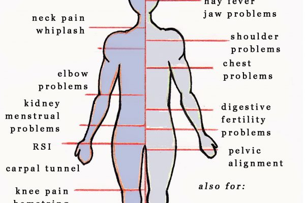 Bowens Human Diagram